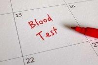 polecamy wykonać kontrolne baranie krwi