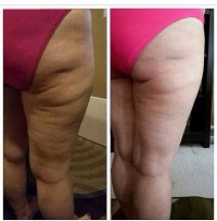 walka z cellulitem